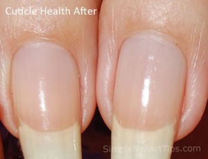 After Cuticle Health Nail Oil 300x229 After Cuticle Health Nail Oil