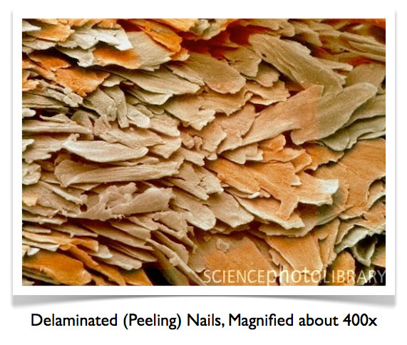 delaminated peeling nails magnified Why Do Nails Peel and Split?